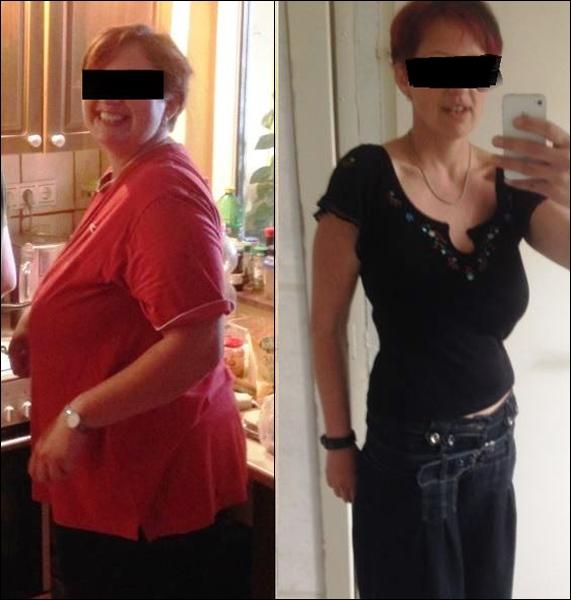 csípőproblémák fogyás után gyorsan lefogy a hasa egy hét alatt